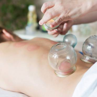 Deep Tissue with Cupping