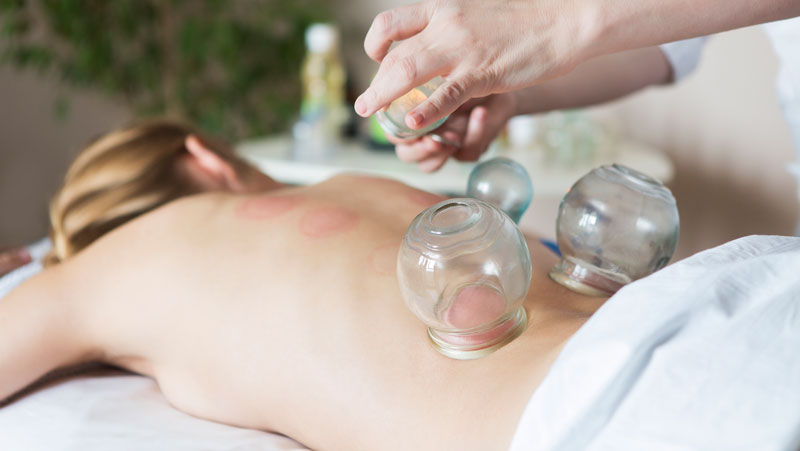 cupping-massage-woman-facing-down-white-towel-menuitem.jpg