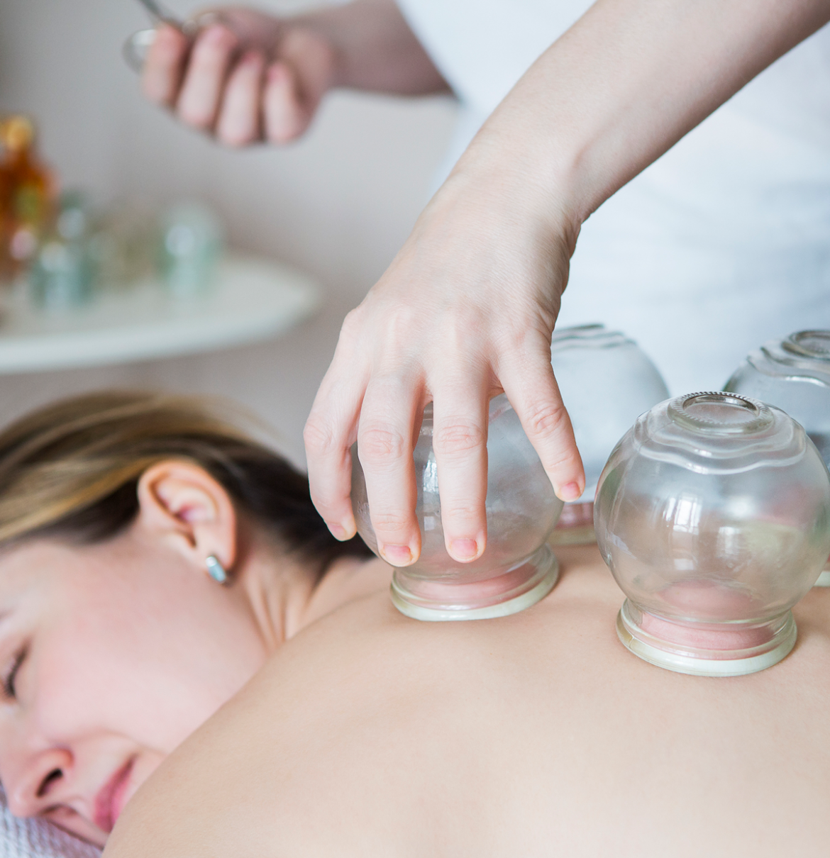 deep-tissue-cupping-massage-woman-cup-back.png