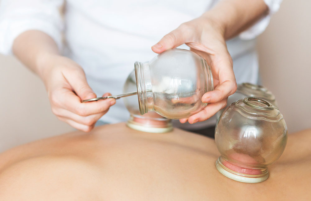 cupping-therapy-client-kelly-erceg.jpg